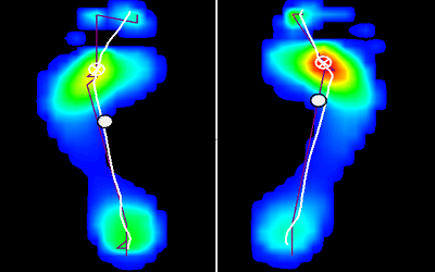 Estudio biomecánico de la pisada para todo los perfiles, sedentarios y deportistas