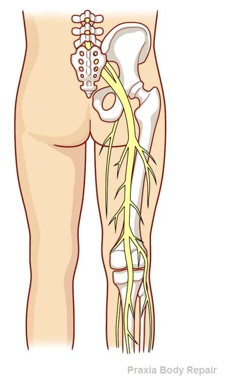 Aliviar el nervio ciatico