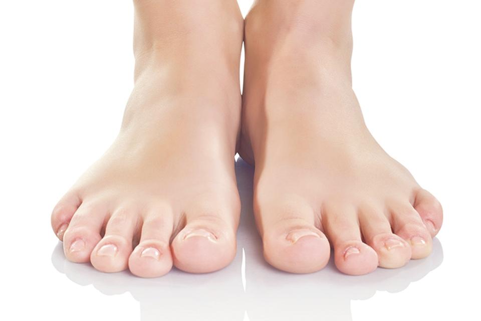 Onicomicosis: hongos en las uñas de los pies.