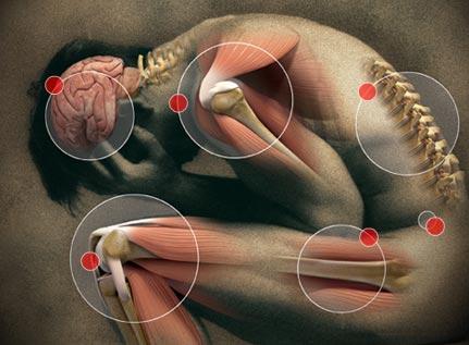 Fibromialgia: fisioterapia y rehabilitación