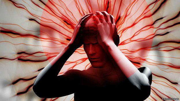 Migrañas: síntomas y tratamientos