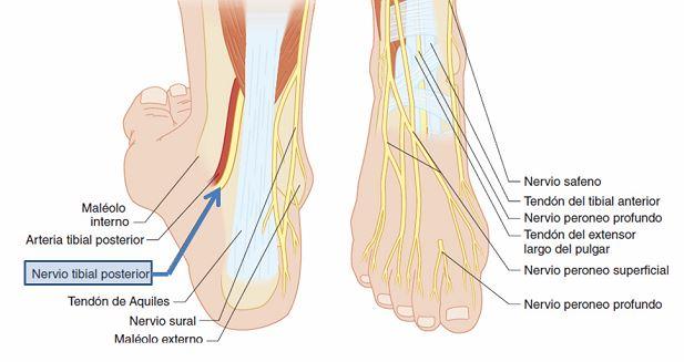 Tendinitis Tibial Posterior Praxia Body Repair