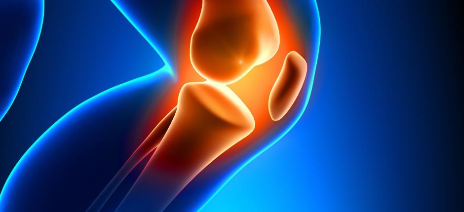 Artrosis en la rodilla