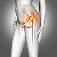 La bursitis de cadera, síntomas y ejercicios caseros